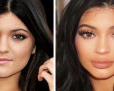 Chirurgie : Ces célébrités qui ont ruiné leur visage-Photos